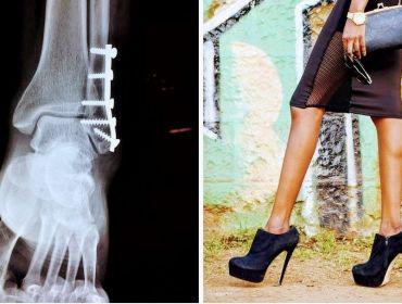 caviglia-frattura-ortopedia