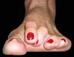 Anche le dita deformate possono essere belle
