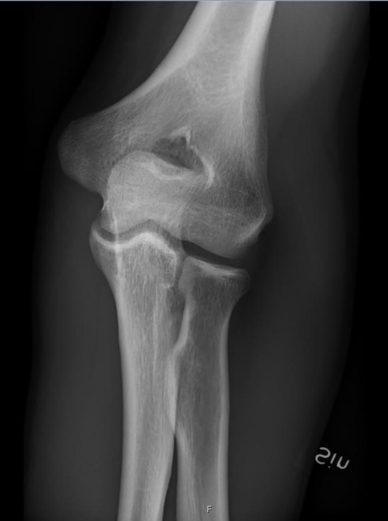 Radiografia del gomito che mostra la anatomia delle ossa del gomito