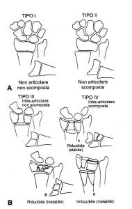 classificazione-frattura-polso
