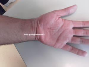 cicatrice-polso-volare-frattura