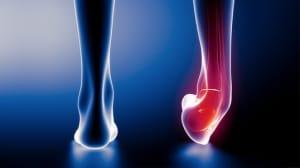 distorsione-caviglia