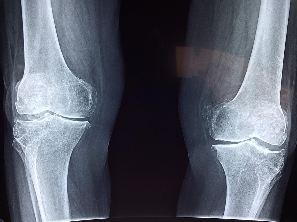artrosi-ginocchio-radiografia