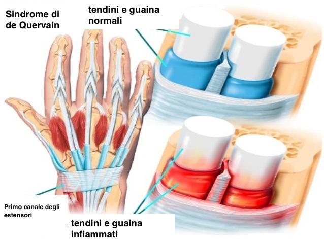 anatomia-polso-tenosinovite