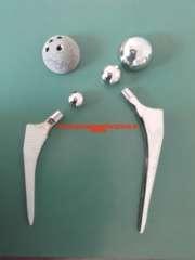 protesi-cementata-anca