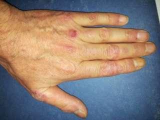 Artropatia psoriasica