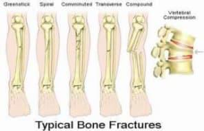 descrizione-fratture-ossa