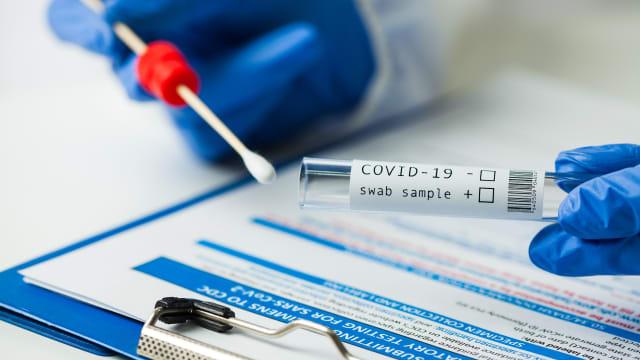 Bei mehr als 30 Zyklen findet der PCR-Test Virenfragmente, die ungefährlich sind. (Bild: shutterstock)