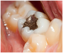 Discolored Tooth Fillings