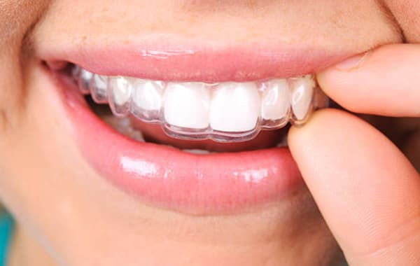 Invisalign on teeth