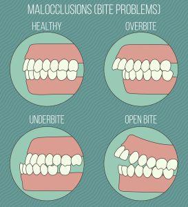 Causes of Buck Teeth | Beaverton Dentist | Definition Dental