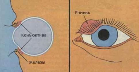 Ячмінь на оці - причини, симптоми і лікування у дорослих і дітей