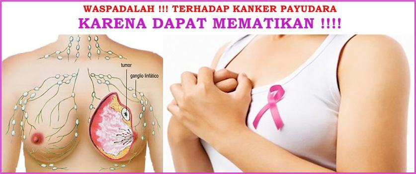 Cara Mengobati Kanker Payudara Stadium 4