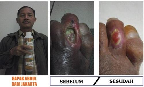 antibiotik untuk luka pasien diabetes