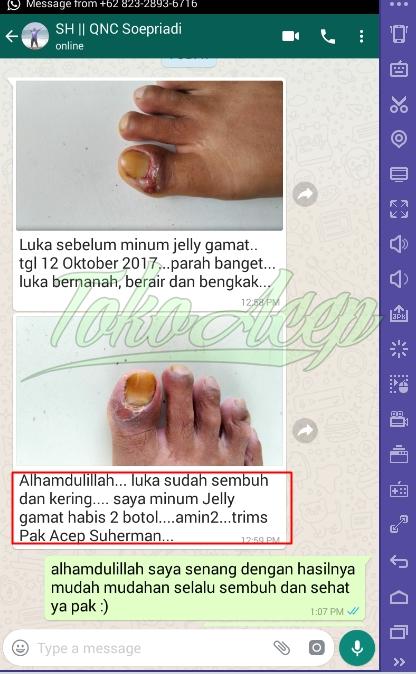 obat tradisional jari bengkak bernanah