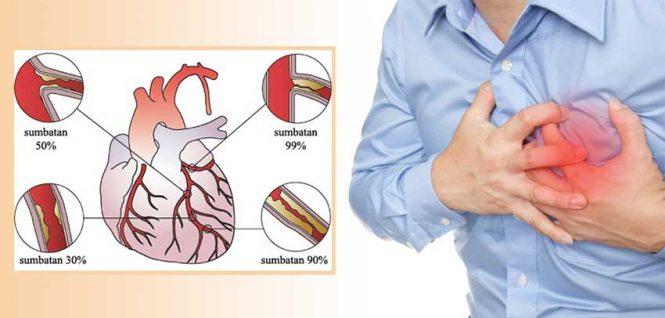 Obat Jantung Koroner Di Apotik