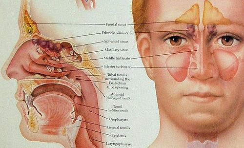 cara mengobati sinusitis yang sudah parah