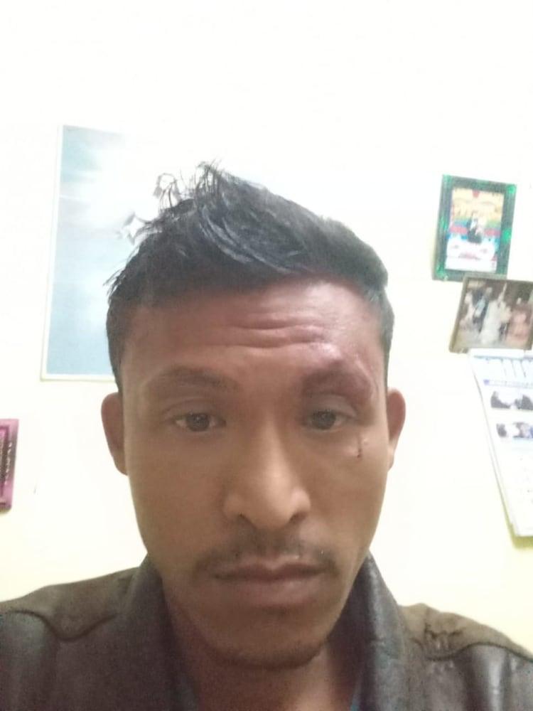 Korban, Julius Sitanggang.Foto:Ist