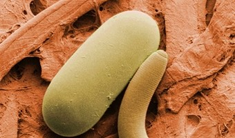 Gut microbes can fight parasites: Probiotics may reduce infections, and severity of infections, in developing countries