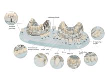 Study Model Demo Implant C+B img