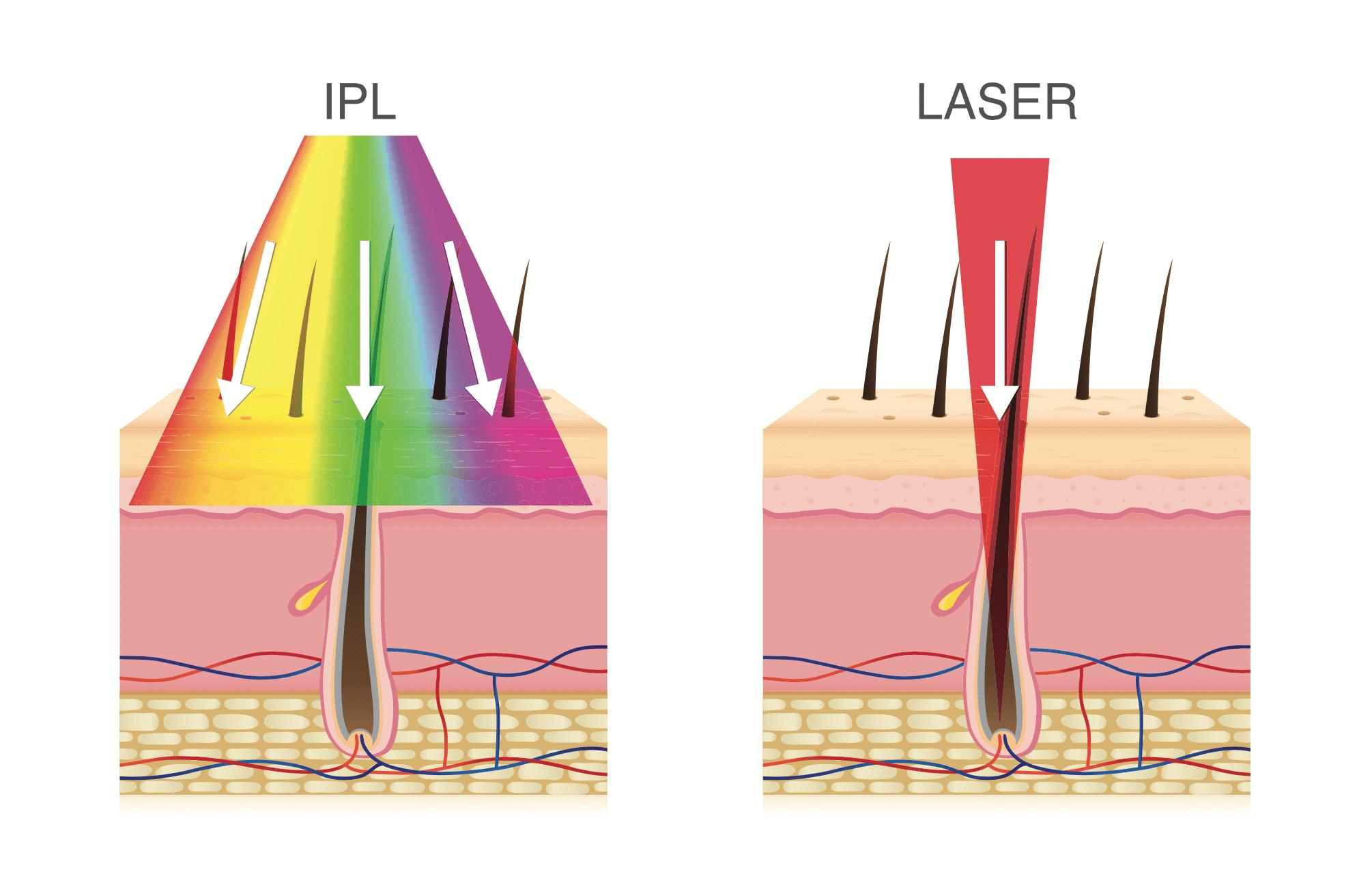 Explications sur l'épilation laser au centre dermelia Marseille
