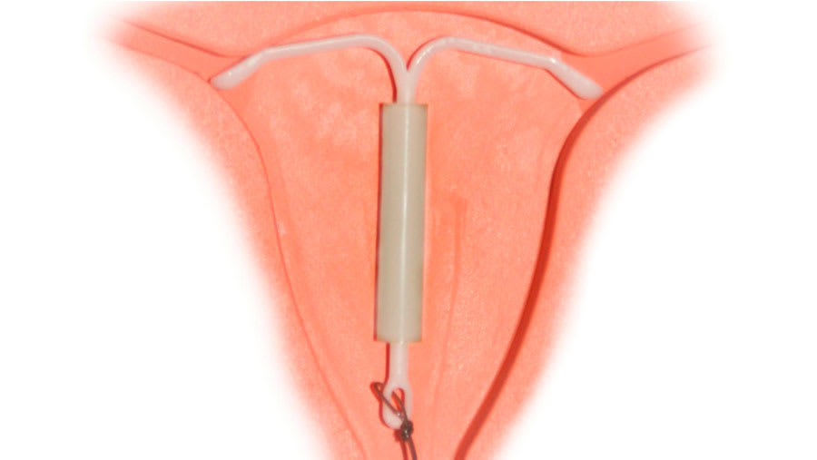 hormone releasing intrauterine device
