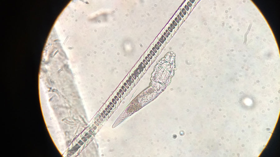 Microscopic view of Demodex mite