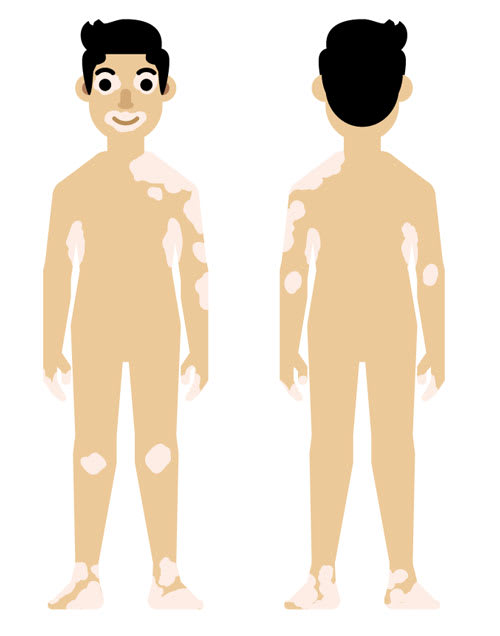 Schematic of vitiligo in male cartoon with skin type 3