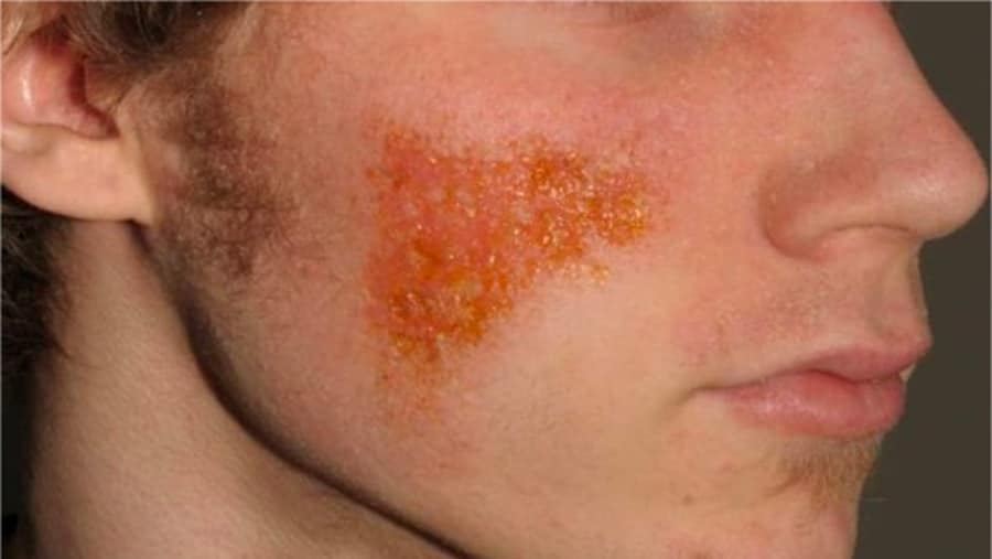 Eczema on the right cheek that is secondarily infected