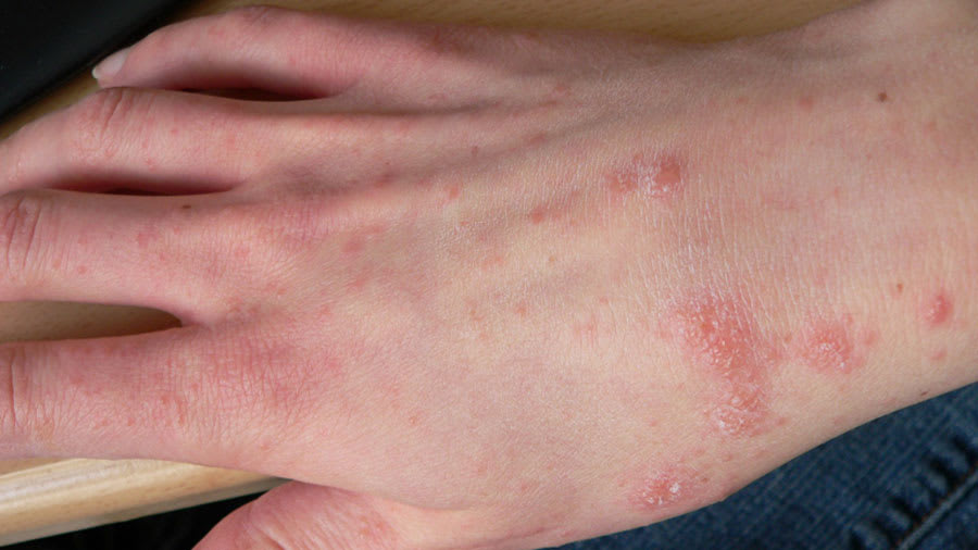 Scabies on right hand
