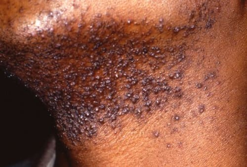 Pseudofolluculitis barbae darkbumps on the neck