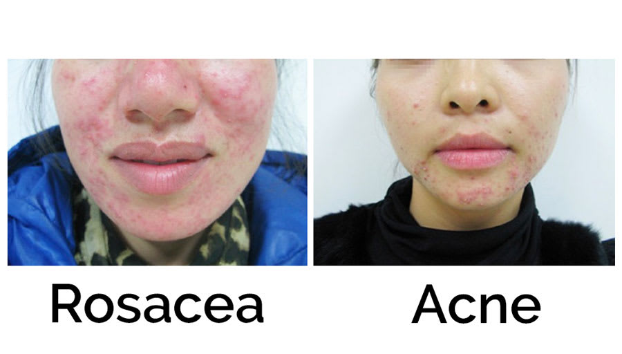 The Subtypes of Rosacea and How They Are Different From Acne