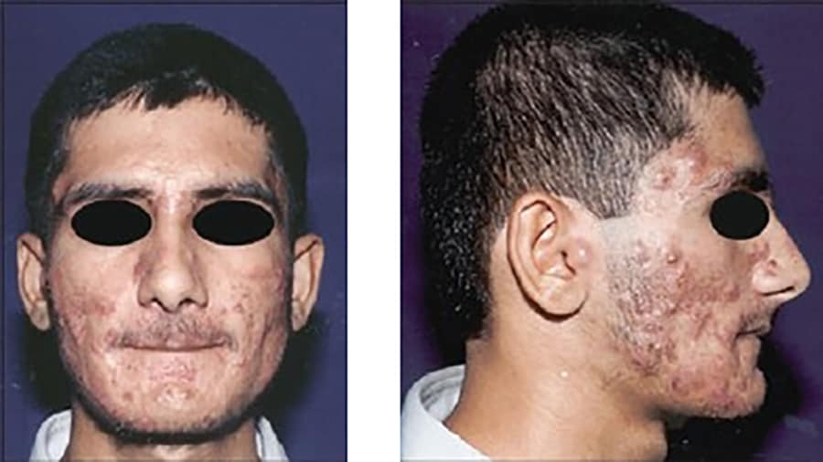 Indian male with severe nodulocystic acne