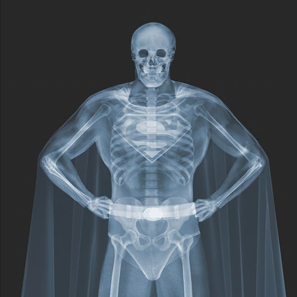 x ray artist super man
