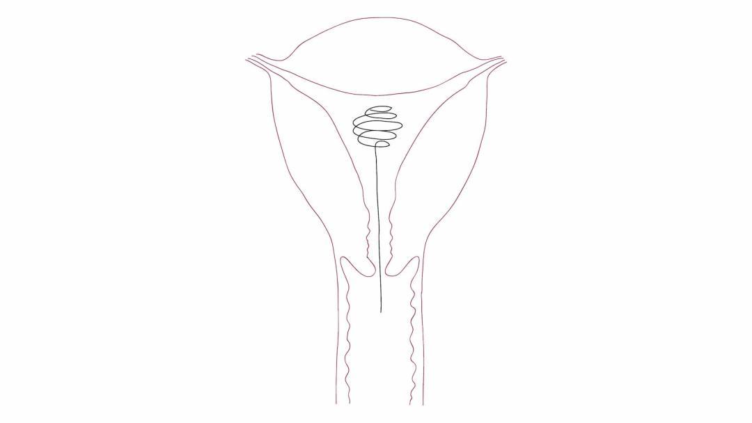 Minal Choudhary — IUC: A Novel Non-Hormonal Contraceptive