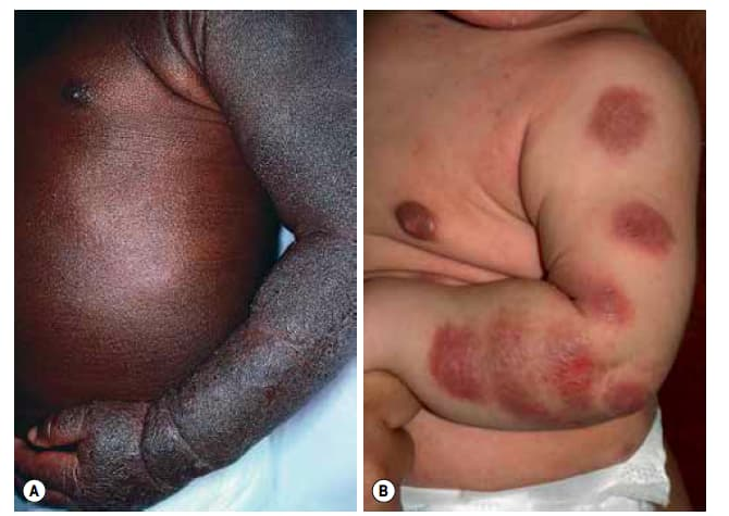 Image of differences between fair and dark skin in atopic dermatitis