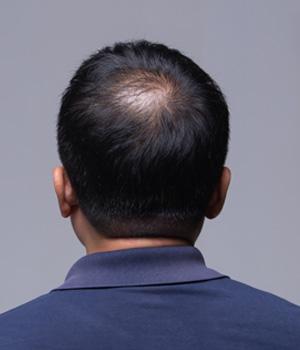 Bald Head Treatment in Vijayawada, Bald Head Treatment in Nellore, Bald Head Treatment in Vizag