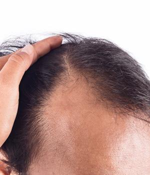 Bald Head Treatment Center in Rajahmundry