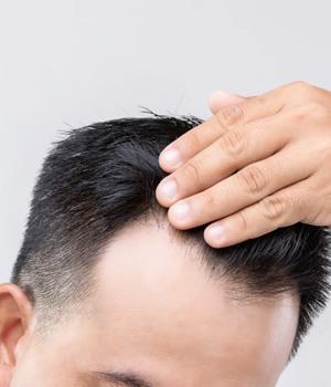 Bald Head Treatment in Tiruapthi, Bald Head Treatment in Bhimavaram, Bald Head Treatment in Chennai, Bald Head Treatment in Bangalore