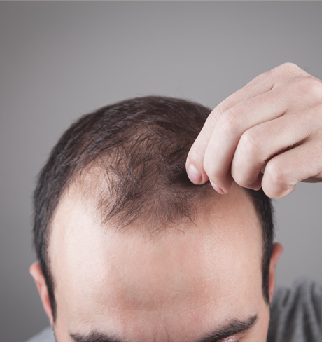 Bald Head Treatment in Hyderabad, Bald Head Treatment in Karimnagar
