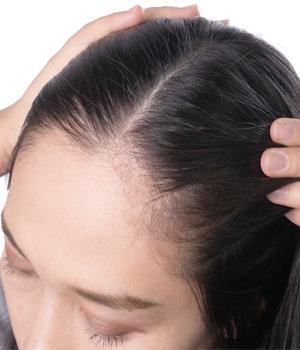 Hair Growth Treatment in Bhimavaram, Hair Growth Treatment in Vizag, Hair Growth Treatment in Vijayawada