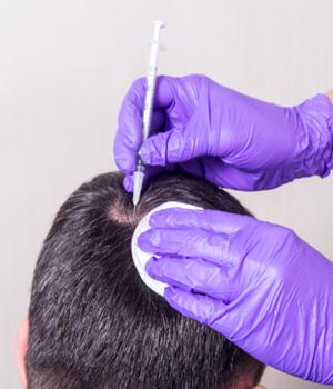 Hair Transplantation in Bangalore