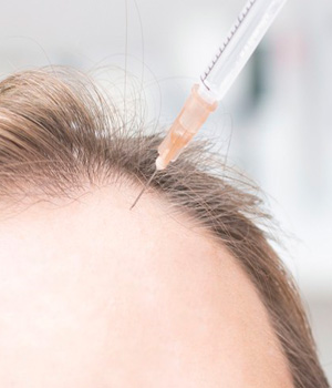 Hair Transplantation in Tirupathi, Hair Transplantation in Nellore