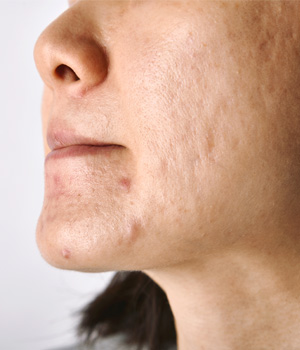 Pigmentation Treatment in Rajahmundry, Pigmentation Treatment in Nellore
