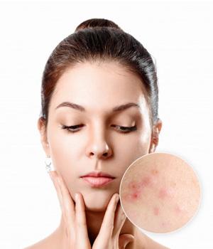 Pimples Treatment in Vijayawada, Pimples Treatment in Rajahmundry, Pimples Treatment in Nellore
