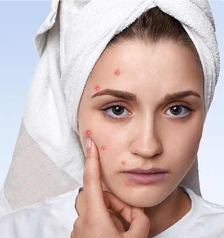 Pimples Treatment in Hyderabad, Pimples Treatment in Bhimavaram, Pimples Treatment in Karimnagar