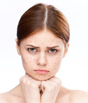 Pimples Treatment in Chennai, Acne Treatment in Vizag