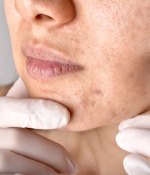 Scars Treatment in Tirupathi, Scars Treatment in Nellore
