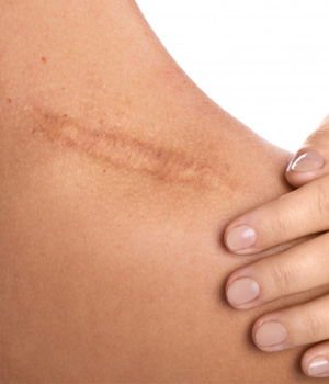 Scars Treatment in Bangalore, Scars Treatment in Chennai