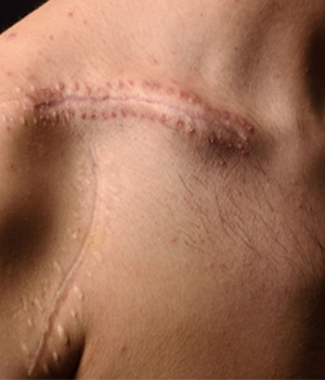 Scars Treatment in Rajahmundry, Scars Treatment Center in Vizag